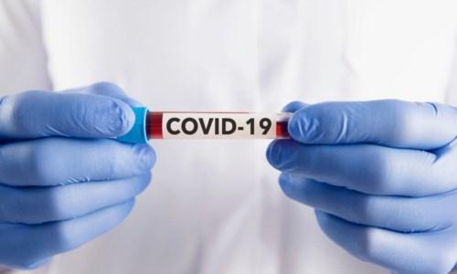Covid, in Calabria 10 morti e 343 contagi nelle ultime 24 ore: il bollettino regionale