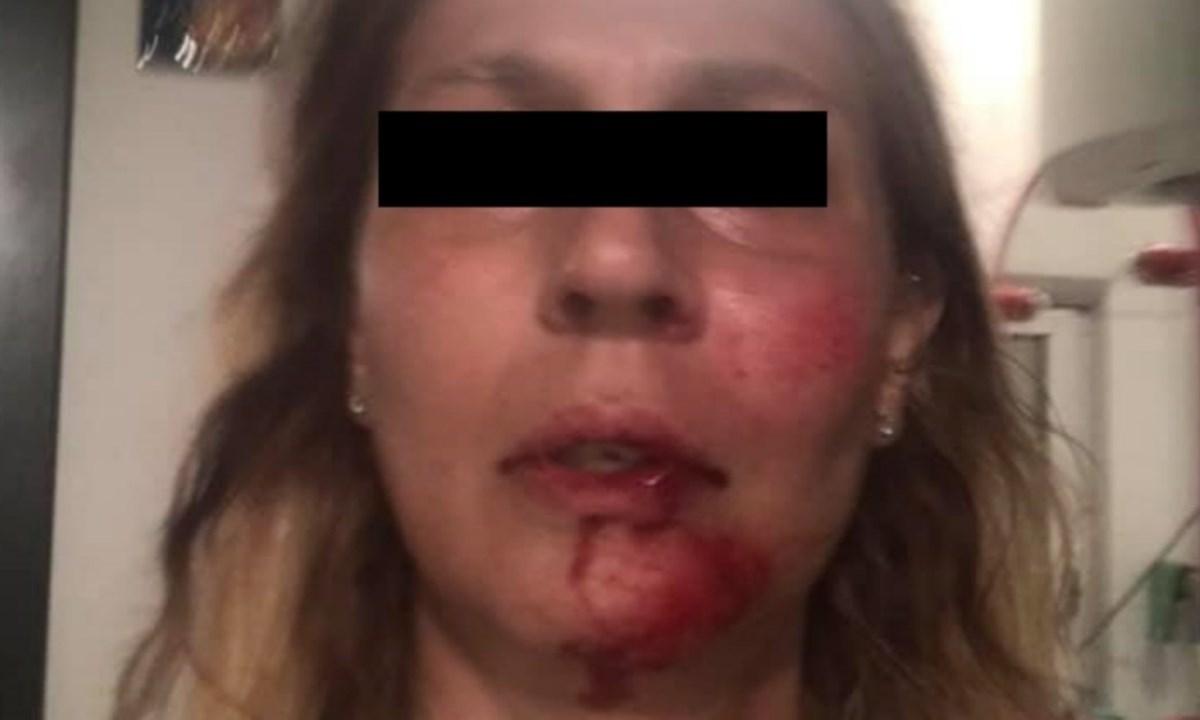 Una delle immagini postate dalla donna per testimoniare l'aggressione