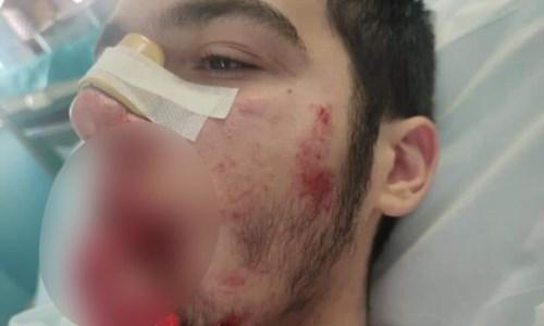 BullismoCastrolibero, l'aggressore del 14enne confessa ai genitori. Il papà: «Dovrà prendersi le sue responsabilità»