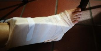 Ingessarono un piede col cartone, il dottore ora spiega: «Artigianato medico»