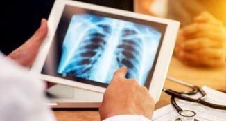 Tubercolosi, Lamezia ospita un evento scientifico in occasione del Tb day