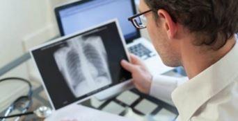 Tubercolosi, in Calabria poco meno di cento casi all'anno - VIDEO
