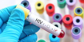 Hiv ed Epatite C: una settimana di screening gratuiti in tutta Italia