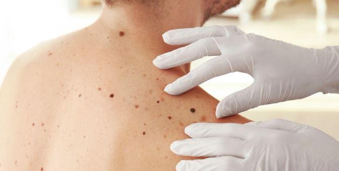 Dermatologia, immagine di repertorio