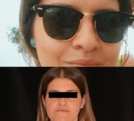 «Un volto nuovo per cambiare vita», le testimonianze sull'eccellenza chirurgica di Catanzaro