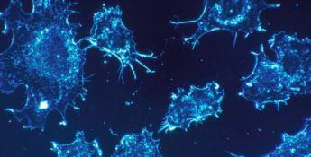 Le cellule tumorali comunicano a distanza, svolta per combattere le metastasi