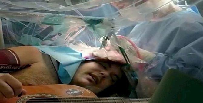 Musicista suona mentre viene operato al cervello - Foto Ansa
