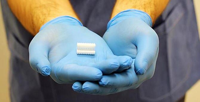 Il bronco in 3D impiantato a un bambino di 5 anni per farlo respirare - Immagine Ansa