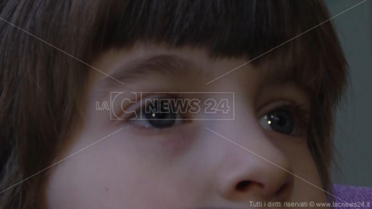 Autismo, la piccola Iulia