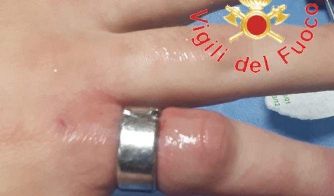 Anello stretto al dito