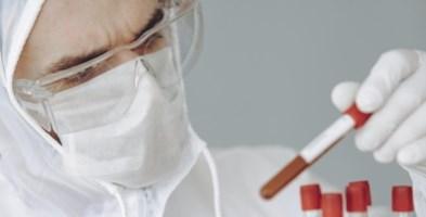 Coronavirus Calabria, contagi sempre più su: 108 nel bollettino e record a Reggio con 71